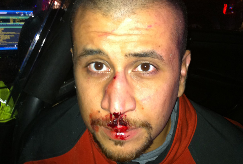 Bloody Nosed not Jewish Zimmerman